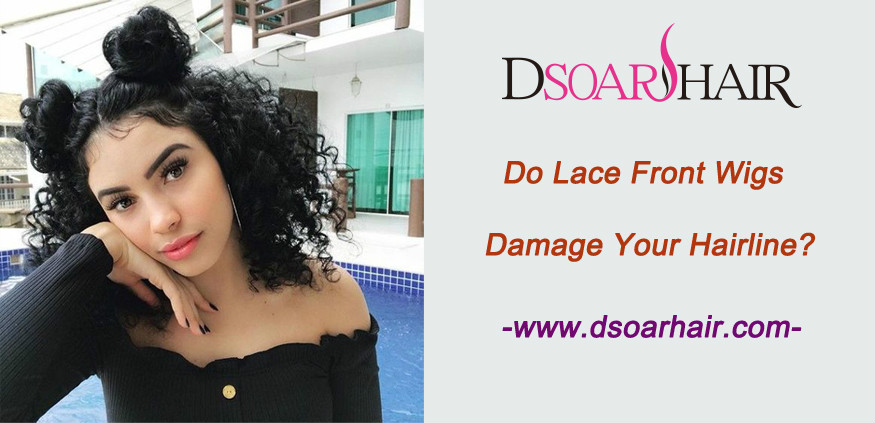 Do lace front wigs damage your hairline